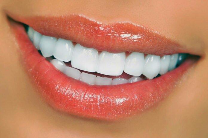 как сделать зубы белее в домашних условиях